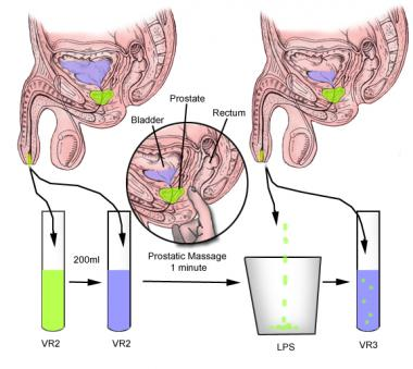 post prostate biopsy instructions