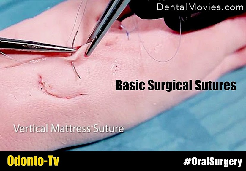 surgical sutures pdf