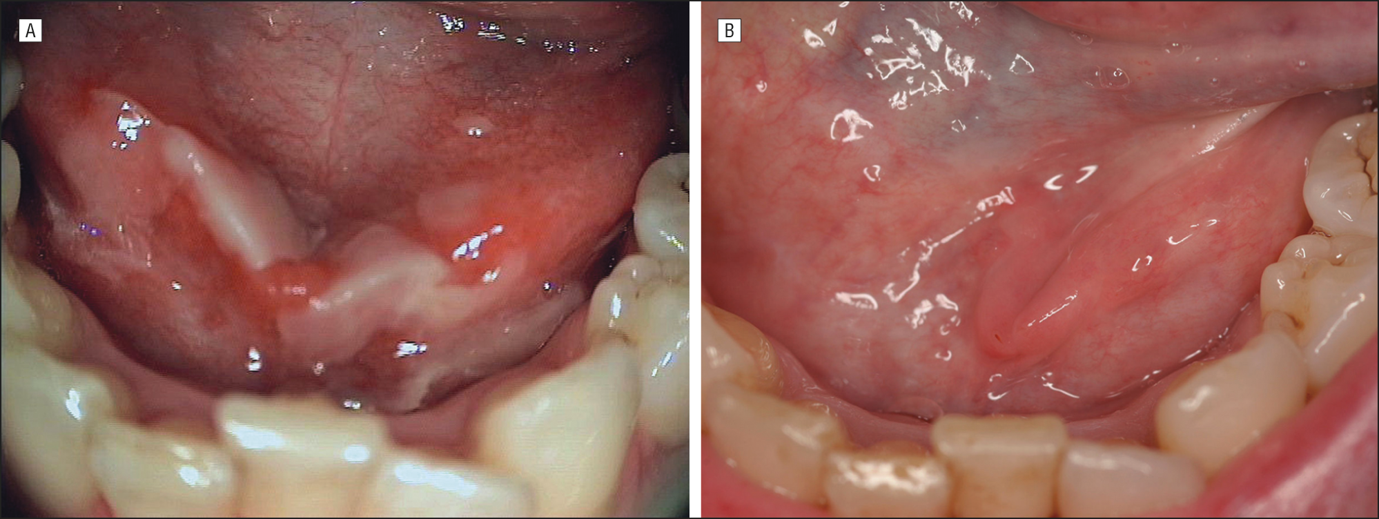recurrent aphthous stomatitis pdf